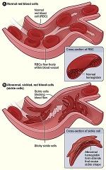 پاورپوینت کامل و جامع با عنوان بررسی کم خونی داسی شکل یا SCA در 22 اسلاید